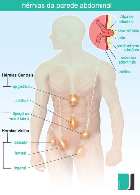 2013-illustration-abdominal-wall-hernias